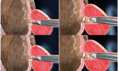 """Prostat tedavisinde """"plazma kinetik TUR yöntemi"""" ile başarılı sonuçlar alınıyor"""